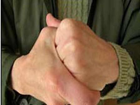 أخطار طرقعة الأصابع