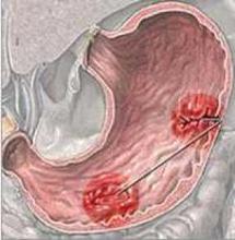 ما هي مسببات قرحة المعدة؟