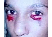 مراهق اميركي يذرف دماً من عينيه