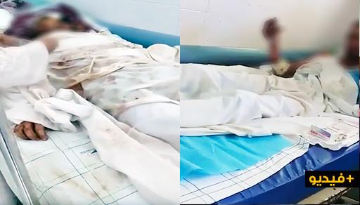 """معاناة مرضى """"الحروق"""" داخل أكبر مسشتفيات المغرب.. يطلبون الموت للتخلص من العذاب"""