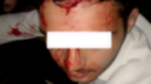 الشرطة الإسبانية تعتقل نجل ملياردير مغربي بسبب الضرب والجرح داخل ملهى ليلي بماربيا