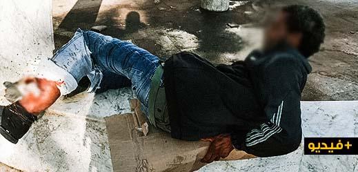 حالة إنسانية مؤثرة.. شاب يعيش حياة التشرد يجوب شوارع الناظور بساق متعفنة ومطالب بنقله الى المستشفى للعلاج