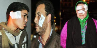 محاصرة مجرم اعتدى على مجموعة من القاطنين بحي قدماء المحاربين بالناظور