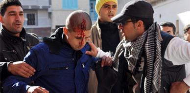 معطلو الناظور يواجهون بتدخل القوات العمومية أمام مقر بلدية أزغنغان
