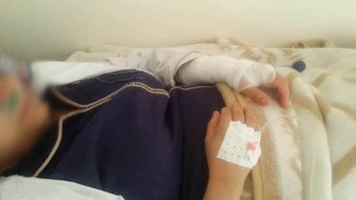 """نقابة تنشر صورآثار الضرب الذي تعرضت له """"قابلة"""" بالمركز الصحي أزلاف وتندد بالإعتداء عليها"""