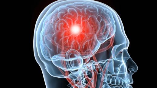 """أطباء: كورونا قادر على إحداث """"تلف عصبي دائم"""" للمصابين"""