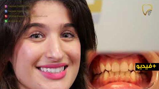 شاهدوا.. عيادة الدكتور شلالي بالناظور تقدم عرضا محدودا وخاصا لتبييض الأسنان