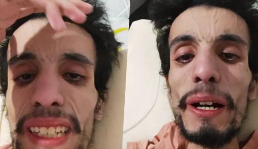 بعد سنوات من التحمّل في صمت.. شاب مغربي يناشد المحسنين والأطباء إنقاذ حياته