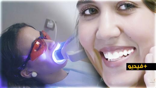 مع عيادة الشلالي تبيض الأسنان في 45 دقيقة فقط.. بتقنية وألة هي الأولى بالناظور