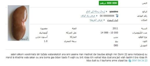 شاب عاطل عن العمل يعرض كليته للبيع مقابل 800 ألف درهم