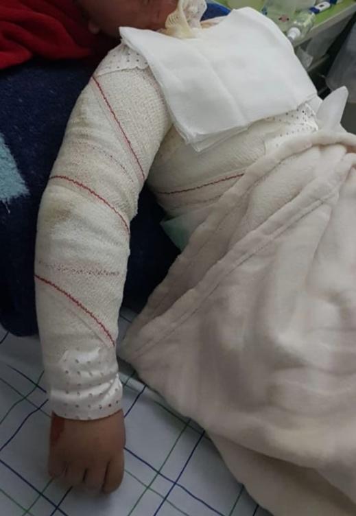 حملة تبرعات بفرنسا لإنقاذ طفل تعرض لحروق خطيرة بالناظور