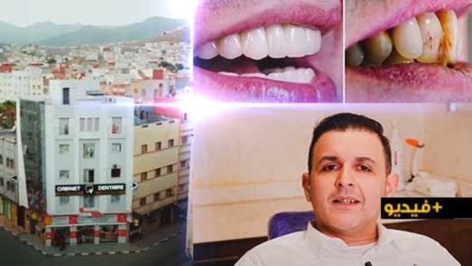 كفاءة وخبرة الدكتور عبد الله الشلالي تغير ابتسامة مهاجر ناظوري بعد نجاح عملية هوليود سمايل