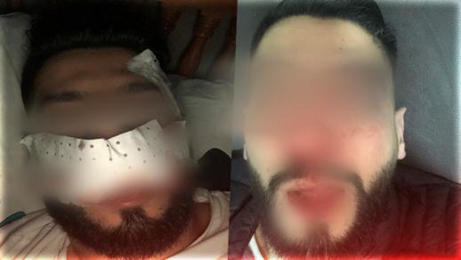 بعدما تسببوا في إصابات خطيرة لشاب.. الشرطة تعتقل أربعة عمال بمحل تجاري بشارع الجيش الملكي