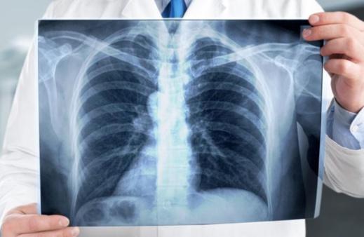 هذه خطة وزارة الصحة لمحاربة داء السل