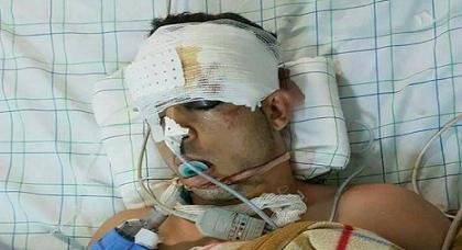 شقيق عماد العتابي: أخي لا يفتح عينيه ولا يحرك أطرافه والطبيب المشرف على حالته يرفض مدي بأي توضيحات