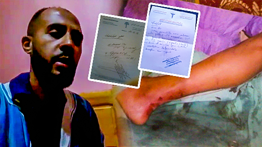 محمد اشملال.. شاب من الحسيمة اعاقه حادث مهني يطالب بمساعدته لانقاذ حياته