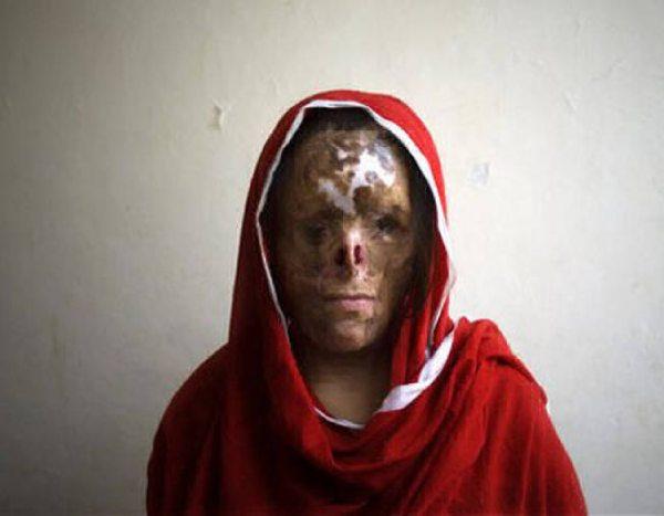 """صورة.. تشويه وجه قاصر مغربي ب""""الماء القاطع"""" في مدينة سرقسطة يثير إستياء عارما في أوساط الجالية"""