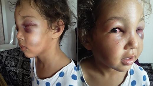 """زايو.. تعذيب الطفلة """"أميرة"""" في الخامسة من عمرها بشكل همجي"""