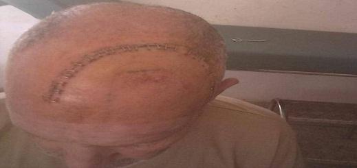 سرطان المخ ينهش رأس مريض في تمسمان ودعوات للتبرع من أجل  إنقاذ حياته