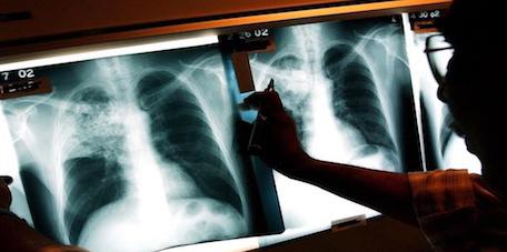 وزارة الصحة: تسجيل أزيد من 30 ألف مصاب بداء السل خلال العام الجاري