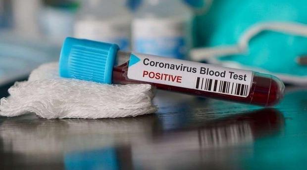 إرتفاع عدد المصابين بفيروس كورونا إلى 77 حالة