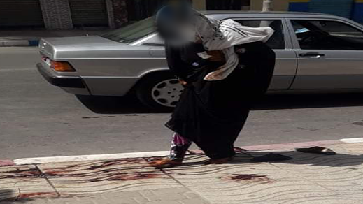 سيدة تطأ برجليها دم قتيل بالناظور تخلق ضجة بمواقع التواصل