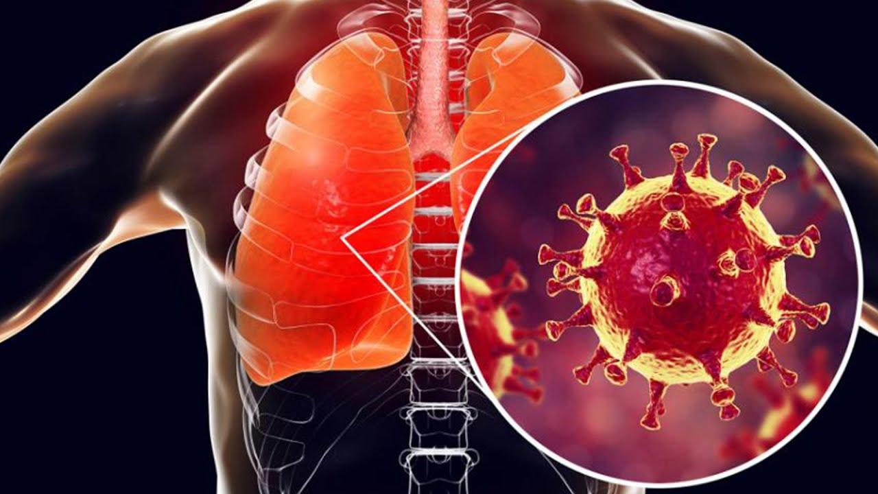خبراء: الحمل الفيروسي للمصابين بكورونا مرتفع حتى بين من لا تظهر عليهم الأعراض