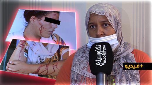 الناظور.. سيدة وبنتها تتعرضان لاعتداء شنيع من طرف مكتري وتطالب السلطات بإنصافها