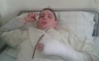 اصابة أحد نشطاء الحراك الشعبي بالحسيمة بكسر مزدوج في اليد بعد التدخل العنيف لقوات الامن