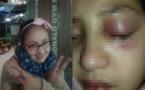 """والدة """"هبة"""" التي فارقت الحياة نتيجة اعتداء معلمتها تتحدث عن نتائج التشريح الطبي"""