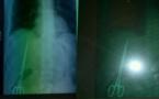 بالصور.. فضيحة تهز قطاع الصحة بالمغرب.. العثور على مقص داخل صدر مريض أجرى عملية قبل 10 سنوات