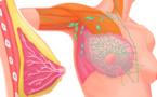 ابتكار طريقة جديدة تروم الحد من انتشار خلايا سرطان الثدي