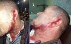 """خطير بالناظور: منحرف في حالة سكر طافح يرسل خمسينيا إلى المستعجلات بعد """"شرملة"""" وجهه بسكين"""