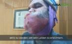 شاهدوا.. خمسيني من الناظور يخوض معركة قاسية ضد السرطان