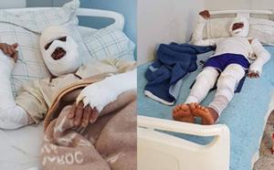 تمسمان.. غاز البوتان يصيب شخصين بجروح بليغة وحملة واسعة على الفايسبوك تناشد مساعدتهما على العلاج